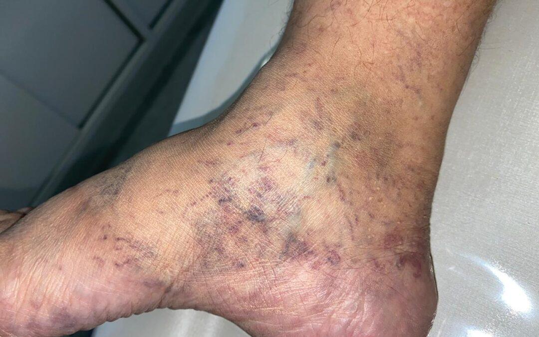 Vasinhos nos pés podem ser um sinal de uma doença oculta!