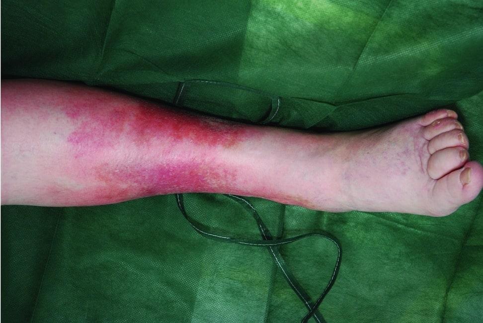 Erisipela: o que é, sintomas e tratamento